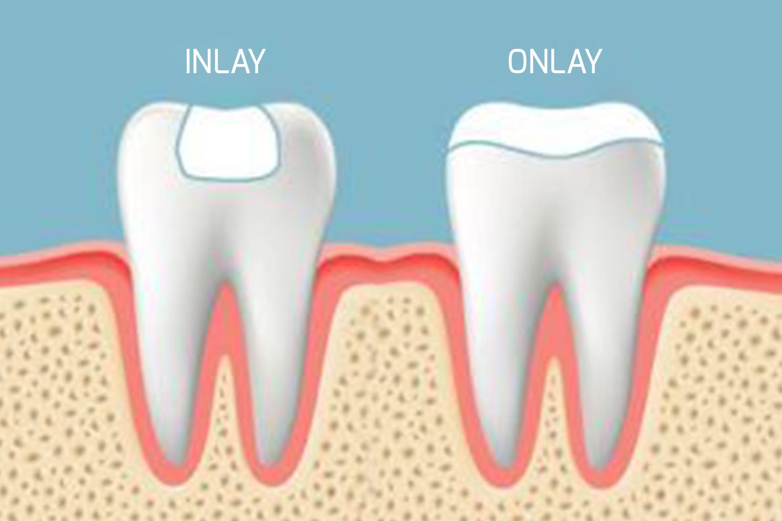 dentisterie holistique haute garonne